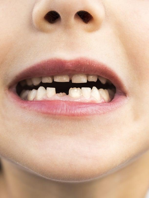 """Tästä se lähtee! Pysyviä hampaita kannattaa hoitaa erityisen huolellisesti jo kasvuvaiheessa. Kuva: <span class=""""photographer"""">iStockphoto </span>"""
