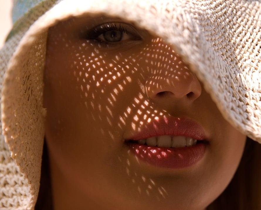 ruusufinni, aurinkosuoja