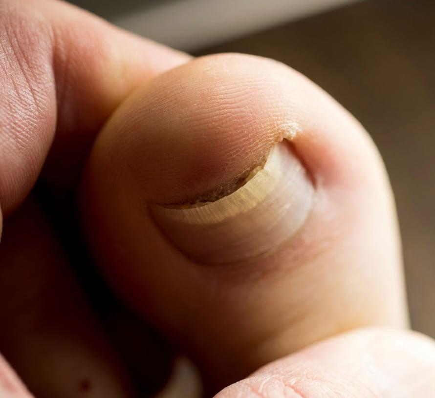 Jos kynsi painaa kynnen vierustan eli kynsivallin herkkää ihoa, syntyy helposti kipeä kynsivallin tulehdus.